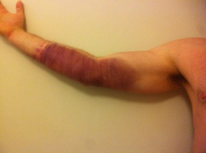 Four days after bump. No pain. Trained. X-ray, blood test and ultrasound all negative. Continued training.